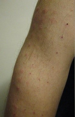 cockroach allergy rash pictures
